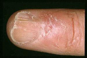 Nail Involvement Lichen Planus