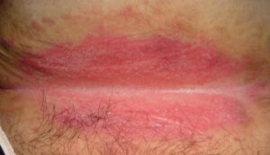 Intertrigo: Skin Fold Rashes: Causes, Ayurvedic Treatment ...