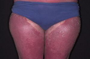 psoriasis erythrodermic