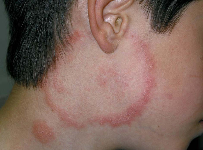 Neck rash - RightDiagnosis.com