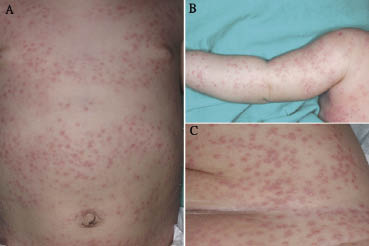 Langerhans cell histiocytosis with atypical histiocytic marrow ...