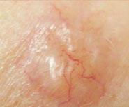 Nodular Basal Cell Cancer