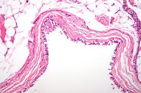 Bronchogenic Cyst- Histology