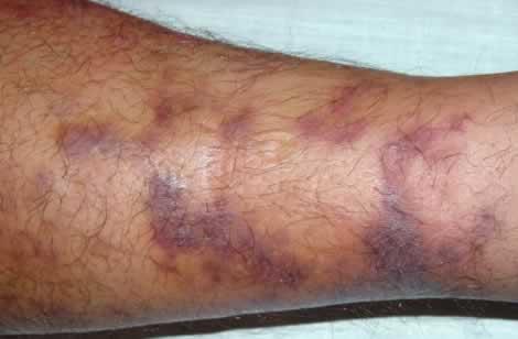 Viruses Human Herpes Virus 8 Perri Dermatology