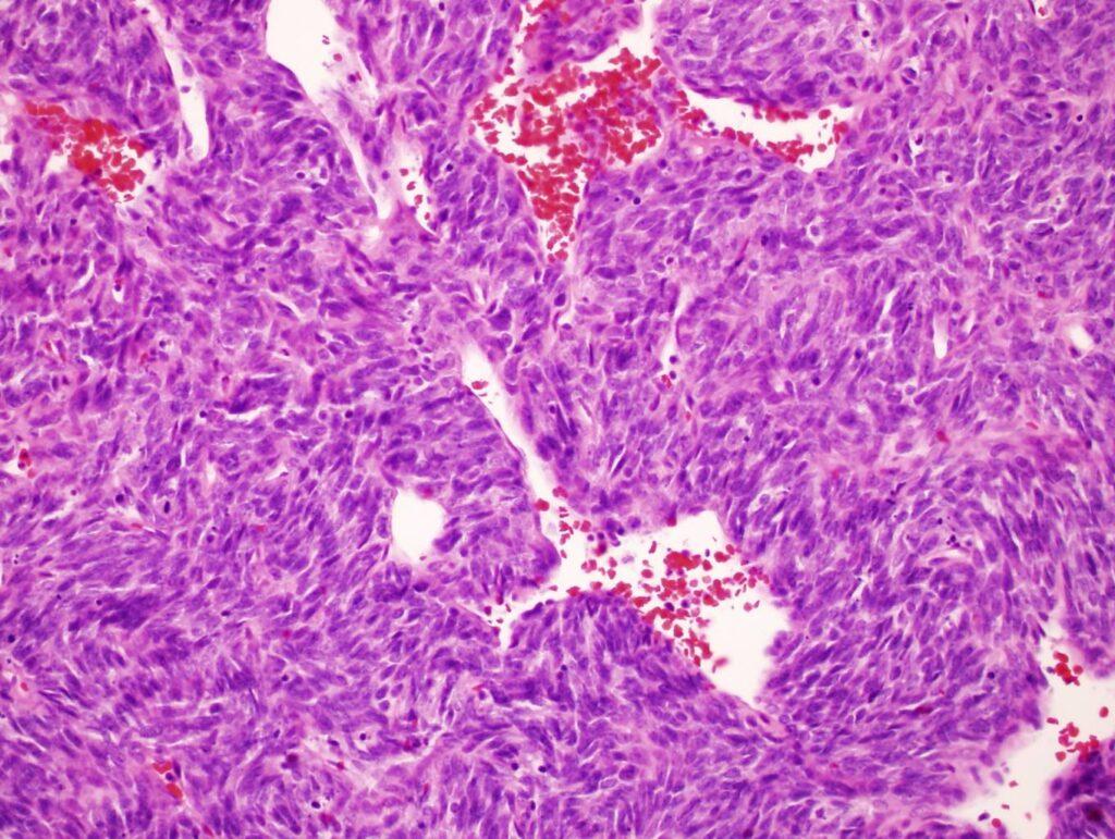 Hemangioperictyoma