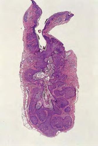 Pilar Sheath Acanthoma with Radiating Lobules